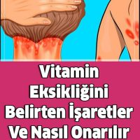 Vitamin Eksikliğini Belirten İşaretler Ve Nasıl Onarılır
